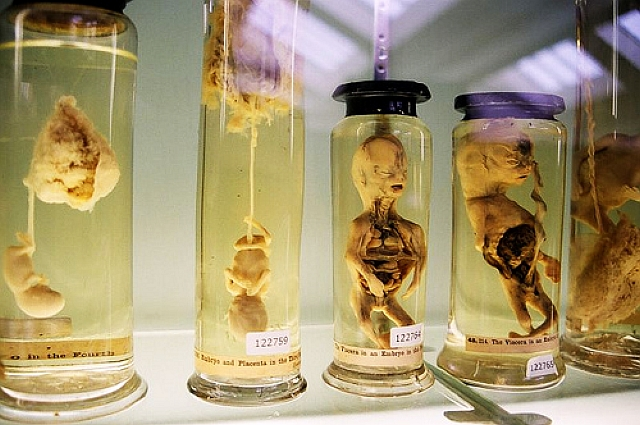 Glasgow University Anatomy Museum. | The Unravelling Of Al Cook...